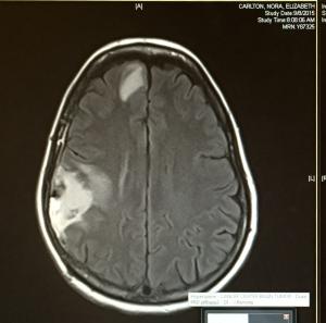 Turning Point Brain Tumor Journey